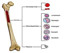 obat tradisional leukemia